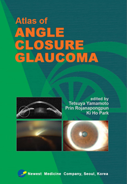 Atlas of Angle Closure Glaucoma : Book Cover Image
