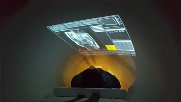 치료 중 투사된 실시간 MRI영상을 보며, 환자 스스로가 호흡을 조절하게 된다